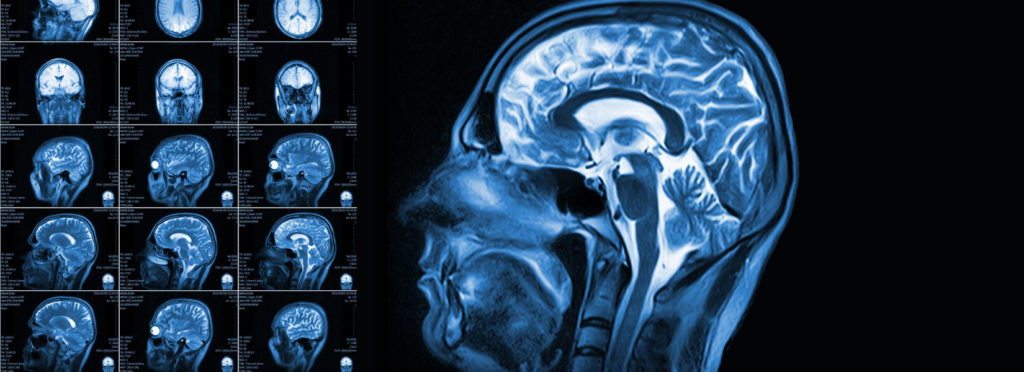 Can Cannabis Help Treat Traumatic Brain Injury? New Research Says So